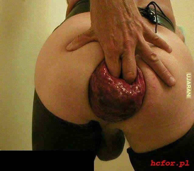 последствия после жесткого секса фото - 3