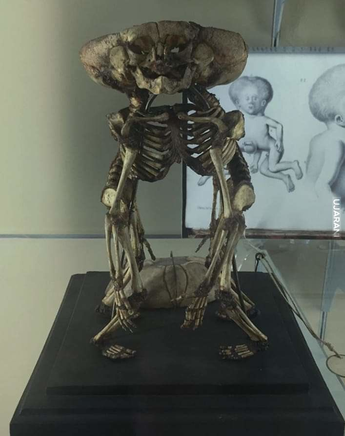 Prawdziwa deformacja ludzkich płodów