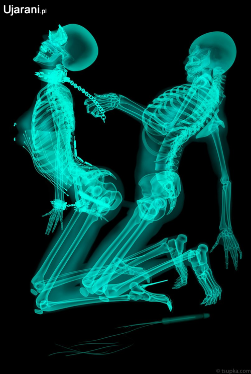 porno-rentgen-igra