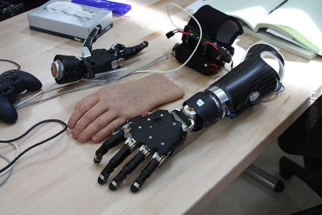 Przełom w protetyce: pierwsza osoba, która może kontrolować dwie protezy rąk jednocześnie