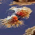 Komórka rakowa pod mikroskopem elektronowym