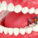 remont zębów